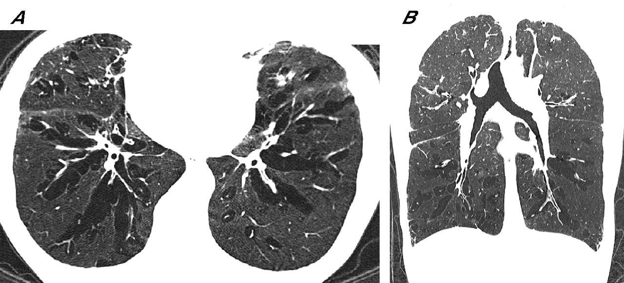 Диффузная эмфизема легких:  прогноз жизни, причины, симптомы, лечение