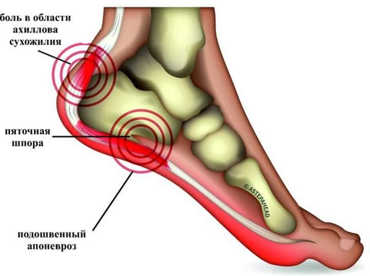 Пяточная шпора - симптомы и лечение в домашних условиях + советы