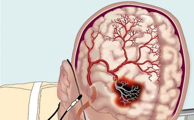 Что такое лакунарный инфаркт головного мозга и чем опасен этот инсульт