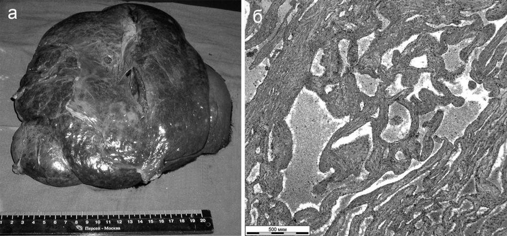 Что такое гемангиома печени (капиллярная, кавернозная), причины возникновения и лечение