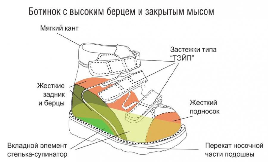 Показания к назначению индивидуальных ортопедических стелек