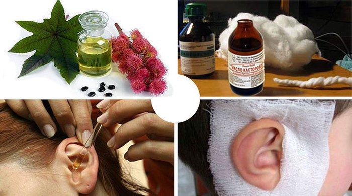 Камфорное масло: состав, свойства и рецепты применения в косметологии и медицине, отзывы