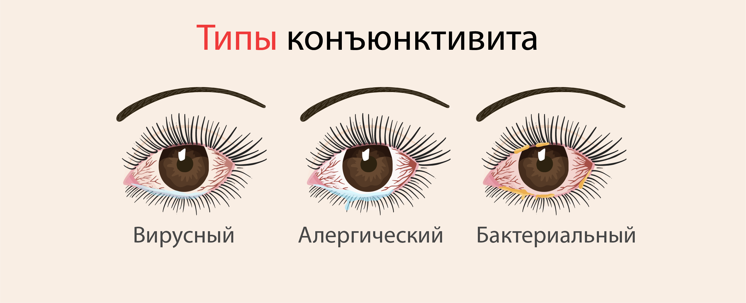 Инъецирование склер. причины инъецирования склер глаз. врожденные заболевания склеры