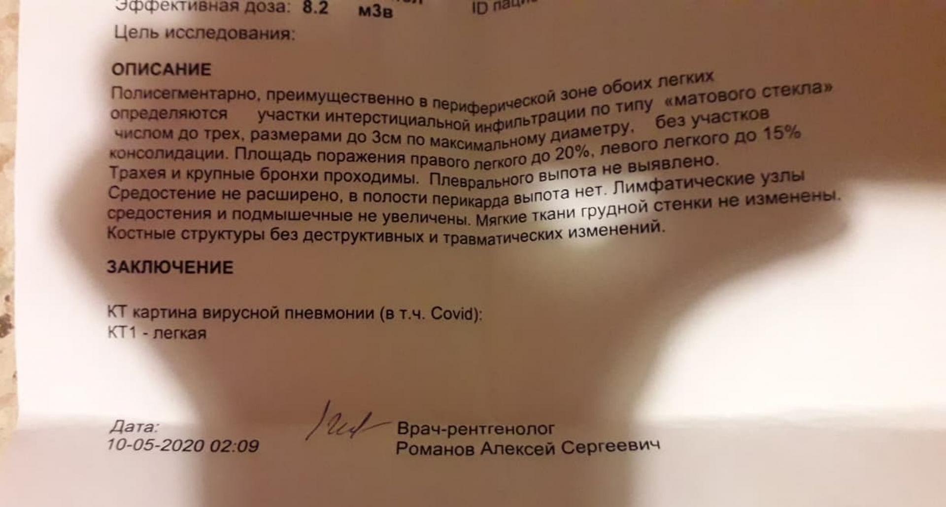 Белорусский рентгенолог изсша отом, чем отличается пневмония при covid-19 ипочемукт лучше тестов