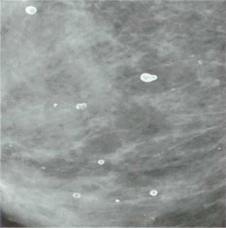 Рак молочной железы кальций