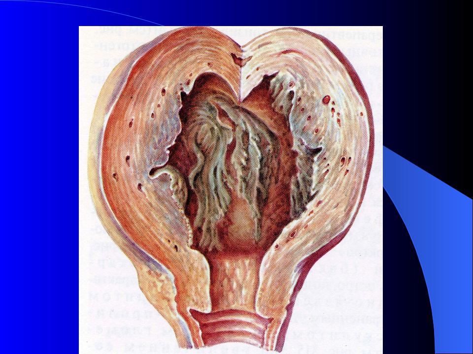Симптомы и лечение метроэндометрита