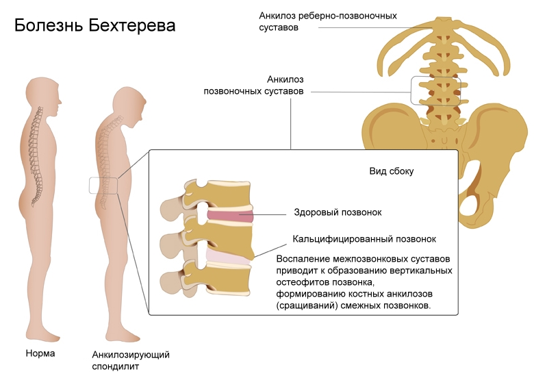 Особенности лечения болезни бехтерева у мужчин