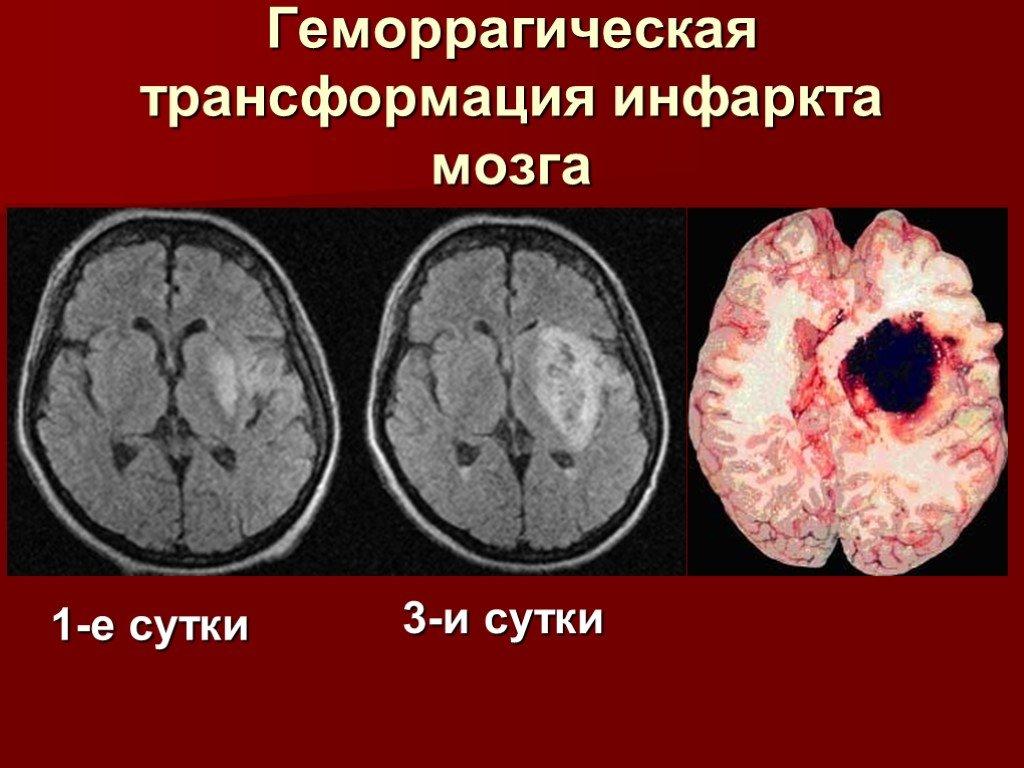 Инфаркт мозга: симптомы и последствия, причины и лечение