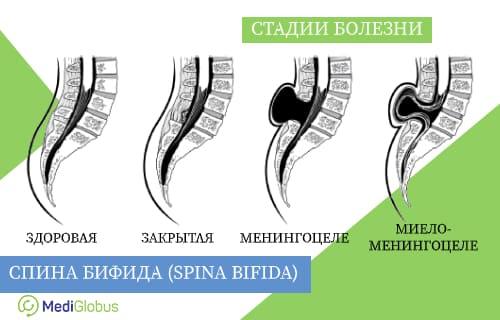 Спина бифида: что это такое, s1, симптомы и лечение заболевания