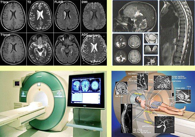 Скт обследование головного мозга