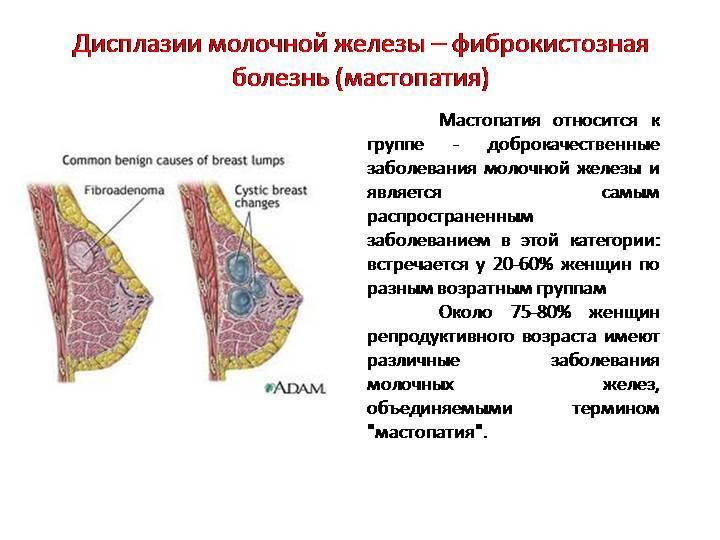 Фиброзно-кистозная мастопатия груди: как лечить