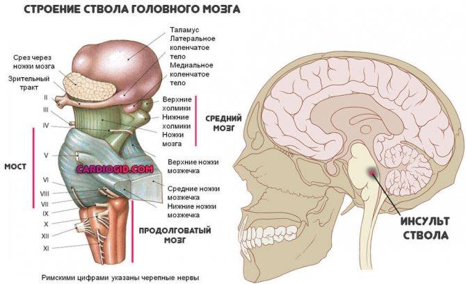 Стволовой инсульт прогноз для старых - проинсульт