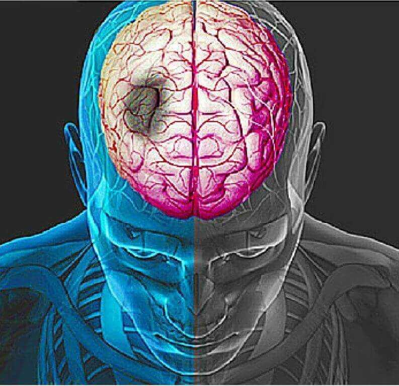 Апоплексический удар (апоплексия, мозговой удар,): характеристика, причины, симптомы, лечение инсульта