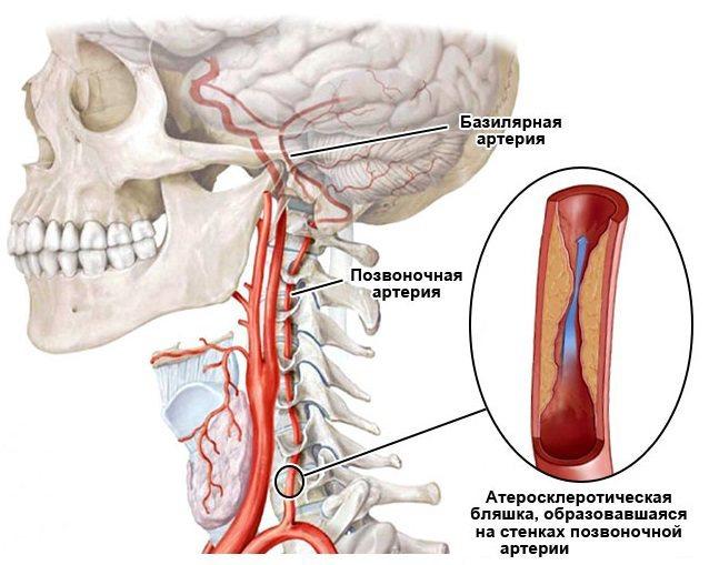Гипоплазия правой позвоночной артерии - что это такое и как лечить? симптомы и лечение