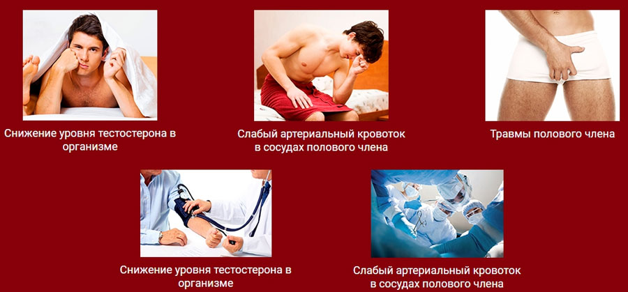 Психогенная эректильная дисфункция, психологическая эректильная дисфункция, причины, симптомы, лечение психологической эректильной дисфункции