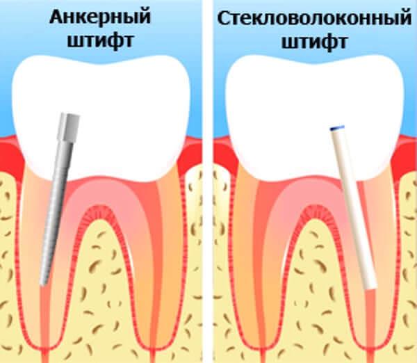 Штифт в зубе: что это такое, применение в стоматологии при протезированни