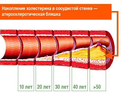 Атеросклероз сосудов: что это, причины, симптомы и лечение