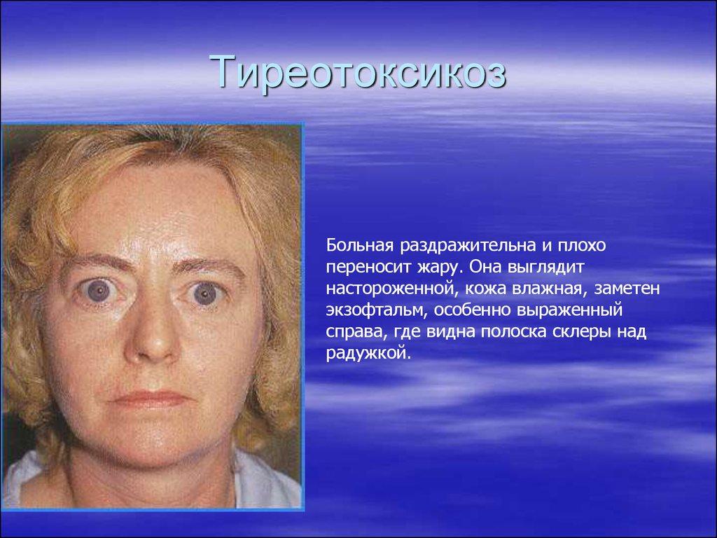 Патология тиреотоксикоз: симптомы у женщин, терапия и осложнения