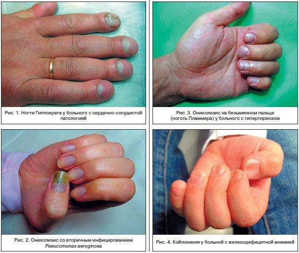Онихолизис ногтей лечение препараты недорогие но эффективные