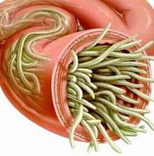 Что такое микробы и чем они отличаются от паразитов? — net-bolezniam.ru