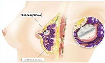 Как лечить фиброаденому молочной железы и что это такое