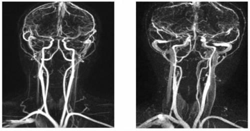 Что такое гипоплазия правой позвоночной артерии и в чем опасность, лечение и прогноз
