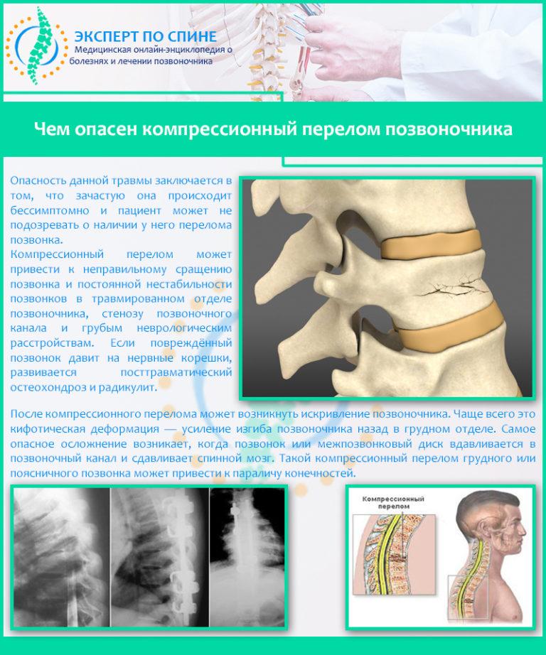 Что такое компрессионный перелом позвоночника: симптомы, лечение и последствия