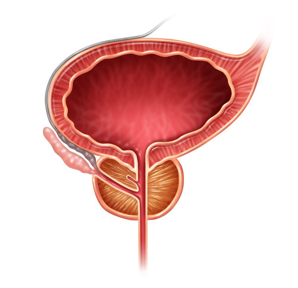 10 фактов, которые нужно знать о гиперплазии предстательной железы