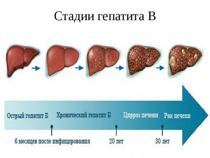 Гепатит с. причины, способы инфицирования, диагностика и лечение заболевания. :: polismed.com