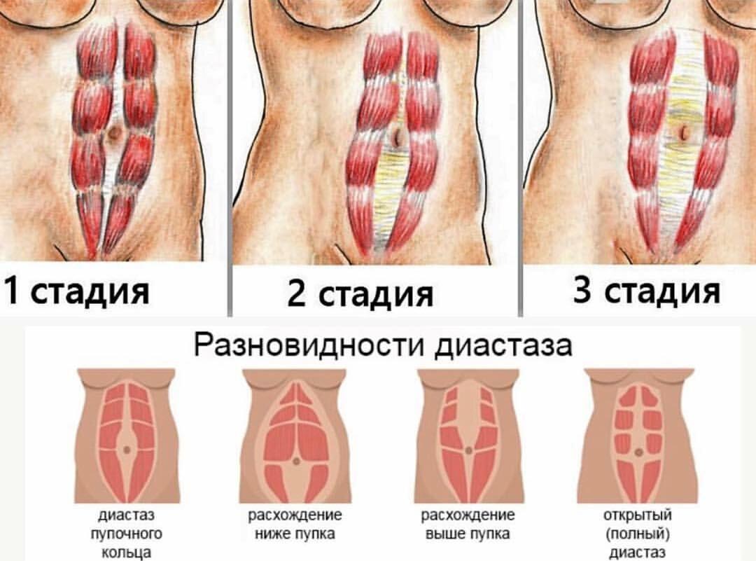 Диастаз после родов: что это, фото, упражнения при диастазе прямых мышц живота, симптомы и признаки, как определить, лечить, что делать