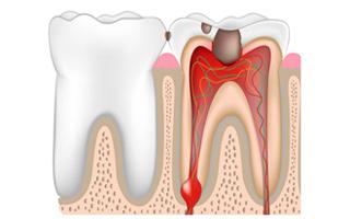Как лечить кисту зуба: народные и современные средства лечения кисты зуба, способы удаления кисты и советы стоматологов