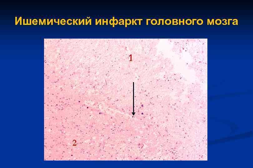 Инфаркт мозга (ишемический инсульт)
