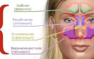 Этмоидит: особенности течения, клинические признаки, диагностика и лечение