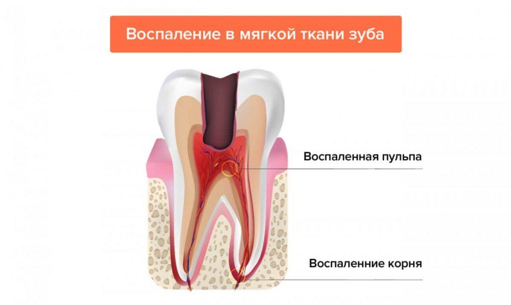 Что собой представляет пульпит зуба и как лечить это неприятное заболевание