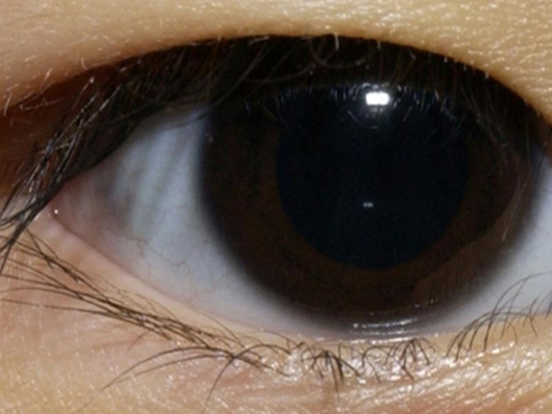 Эпикантус: фото, причины, тактика лечения эпикантуса