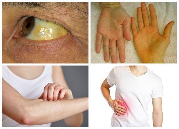Холангиокарцинома: общие сведения, стадии развития