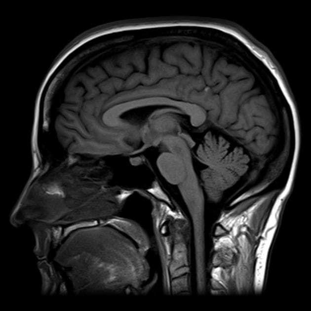 Что показывает компьютерная томография головного мозга?