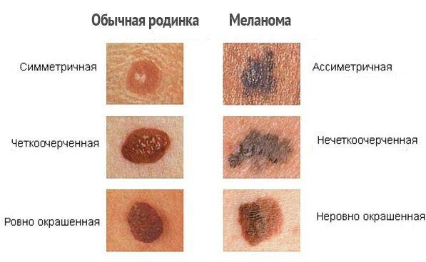 Что такое меланин в организме человека