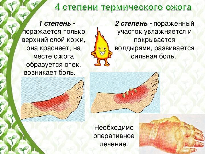 Ожоги кожи. какие бывают ожоги. первая помощь и лечение в домашних условиях.