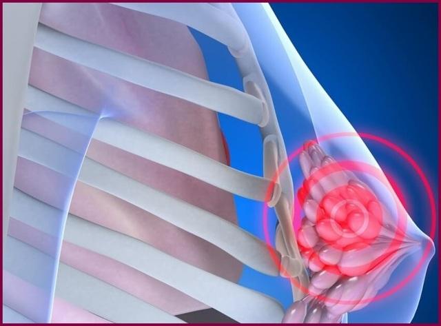 Что такое фиброзно-жировая инволюция молочных желез. причины изменений в женской груди