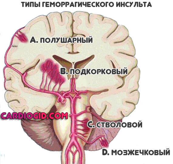 Геморрагический инсульт головного мозга: виды, симптомы, лечение и последствия для человека