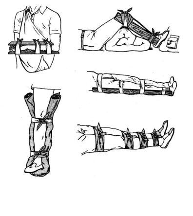 Иммобилизация конечности. шины для иммобилизации