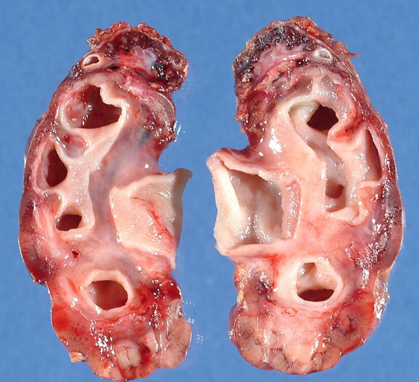 Гидронефроз почки: причины, симптомы, последствия и методы лечения