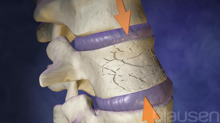Компрессионный перелом поясничного отдела позвоночника – лечение и реабилитация!