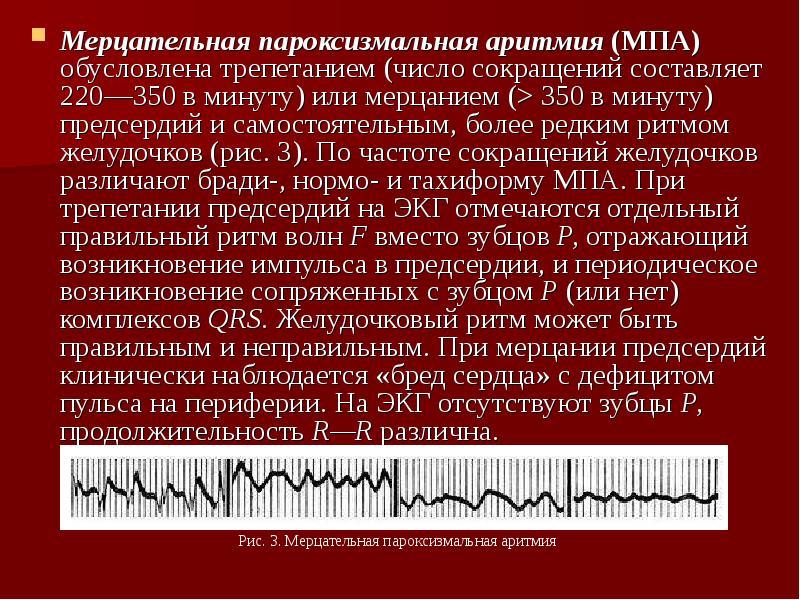 Мерцательная аритмия. причины, симптомы, диагностика и лечение заболевания. :: polismed.com