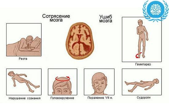 Легкое сотрясение мозга - что это такое, каковы причины и симптомы?