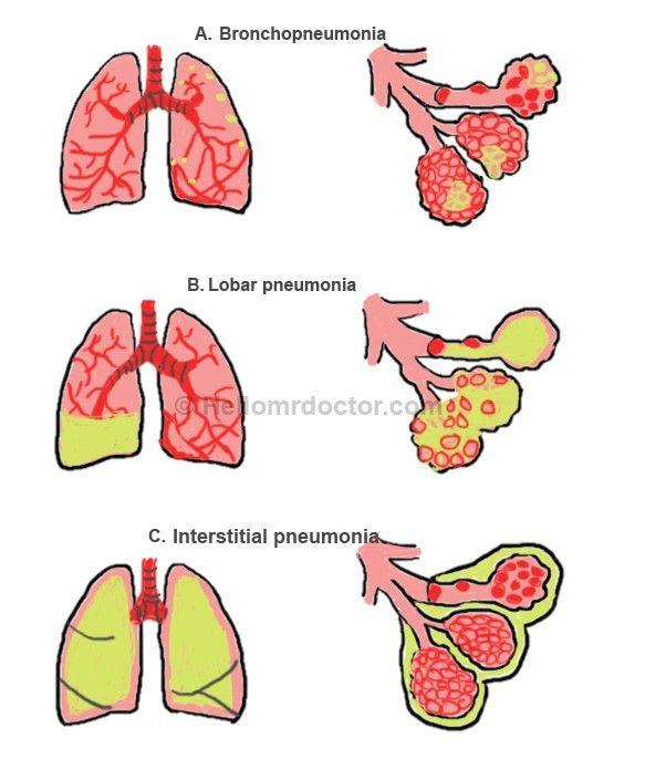 Обструктивная пневмония: причины, симптомы и диагностика. лечение пневмонии в москве