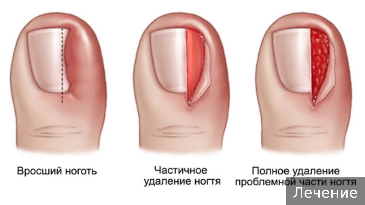 Врастает ноготь что делать - 115 фото вросшего ногтя и его лечения в домашних условиях