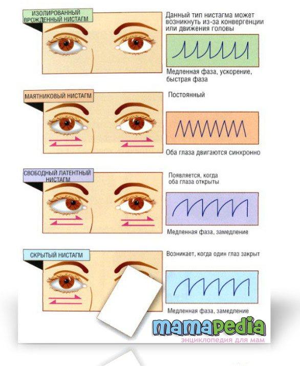 Нистагм   симптомы и лечение нистагма   компетентно о здоровье на ilive