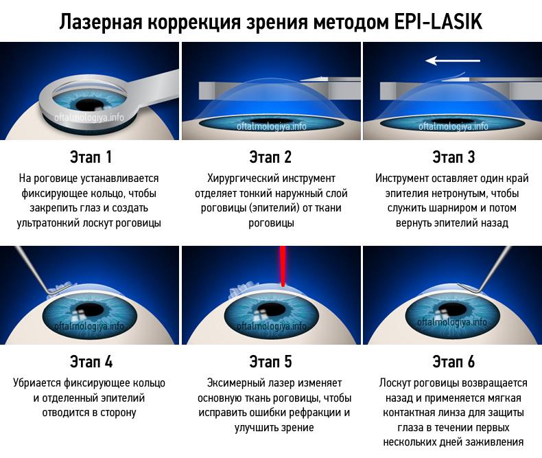 Что такое артифакия глаза когда применяется - мед портал tvoiamedkarta.ru